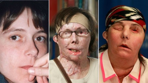 This photo combination shows Carmen Blandin Tarleton, who suffered chemical burns over 80 percent of her body when her estranged husband doused her with lye in June 2007. The undated photo at left, provided by the Blandin family, shows Tarleton before the attack. The center photo, provided by Brigham and Women's Hospital in Boston, shows Tarleton in July 2011. The photo at right shows Tarleton on Wednesday, May 1, 2013, after her successful face transplant in February.(AP)